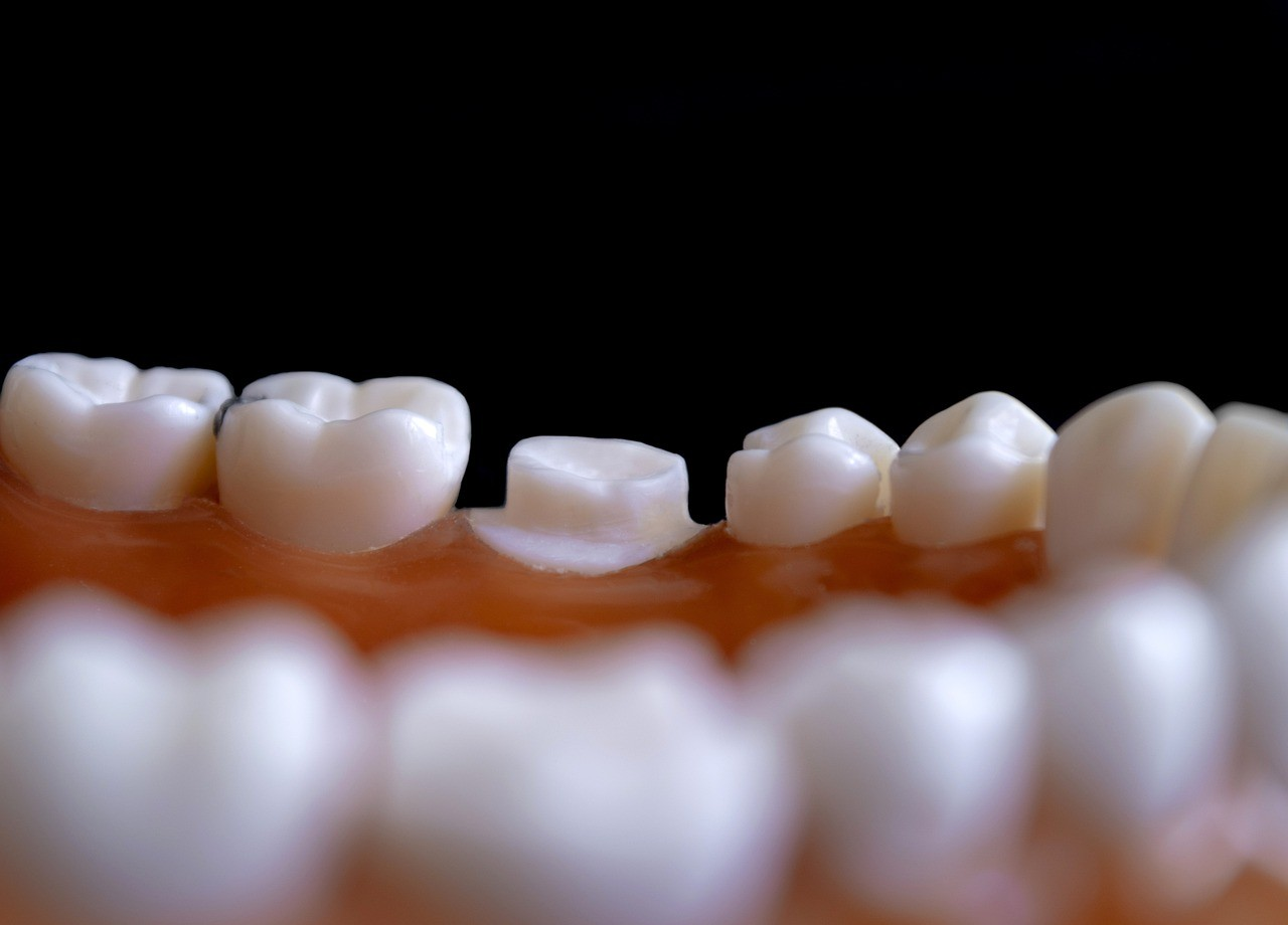 Gesunde Zähne, gesunder Geist?