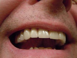 Lachender Mann, zu sehen ist nur der Mund.